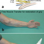 Grip Reanimation FMT