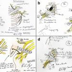 Plexus-Reconstruction-Sketches