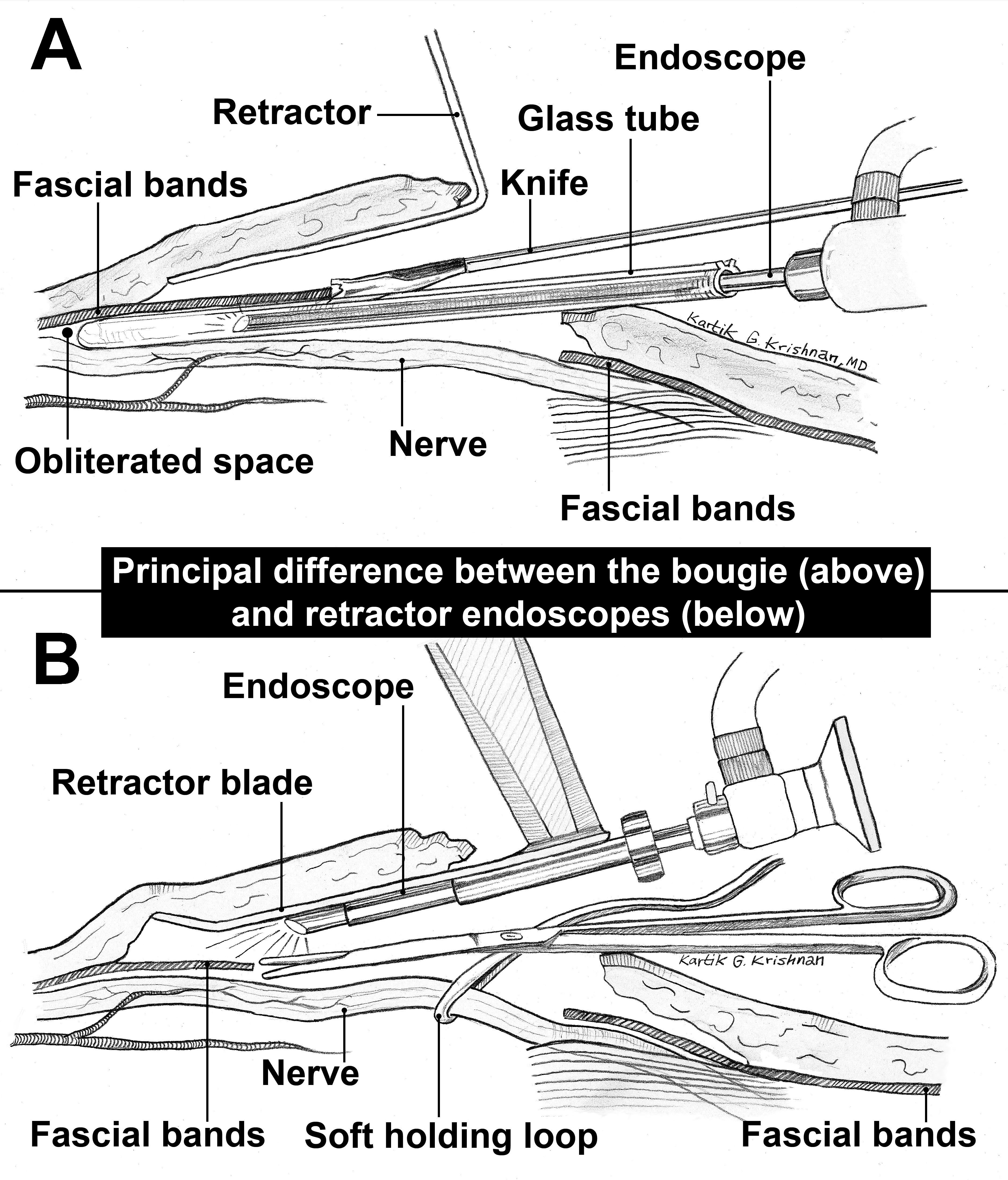 Focal Compression Neuropathy Note This Is A Thumbnail Diagram Click On It To Enlarge The Thumbnails Images