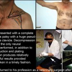 Brachial plexus decompression and result
