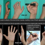 Claw Finger Correction