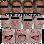 Hypoglossus-facial-nerve