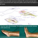 Peroneal Nerve Repair