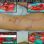 Sciatic-Nerve-Gunshot