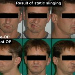 Static-sling-FN