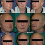 Temporalis-Transfer-Facial-Reanim