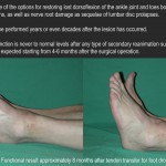 Tendon-transfer-Foot-drop