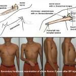 gracilis-elbow-flexion